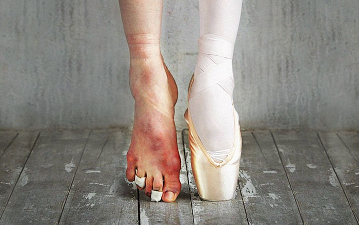 The Cost Of Applause: 77 Pics To Celebrate Ballet Day
