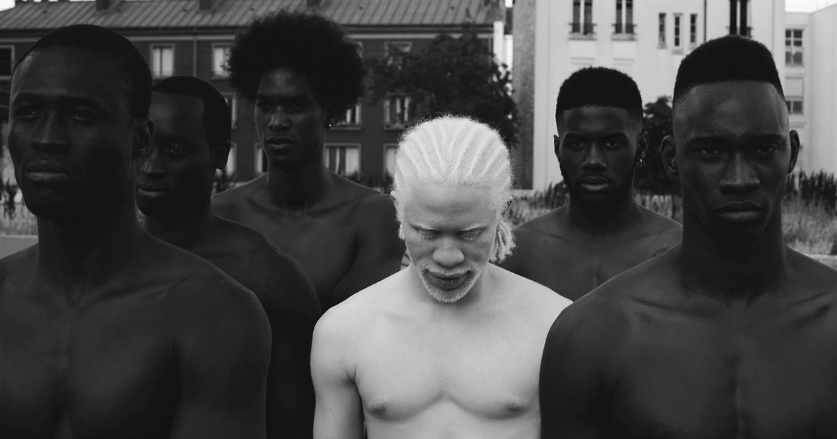 58 Albino People Who'll Mesmerize You With Their Otherworldly Beauty