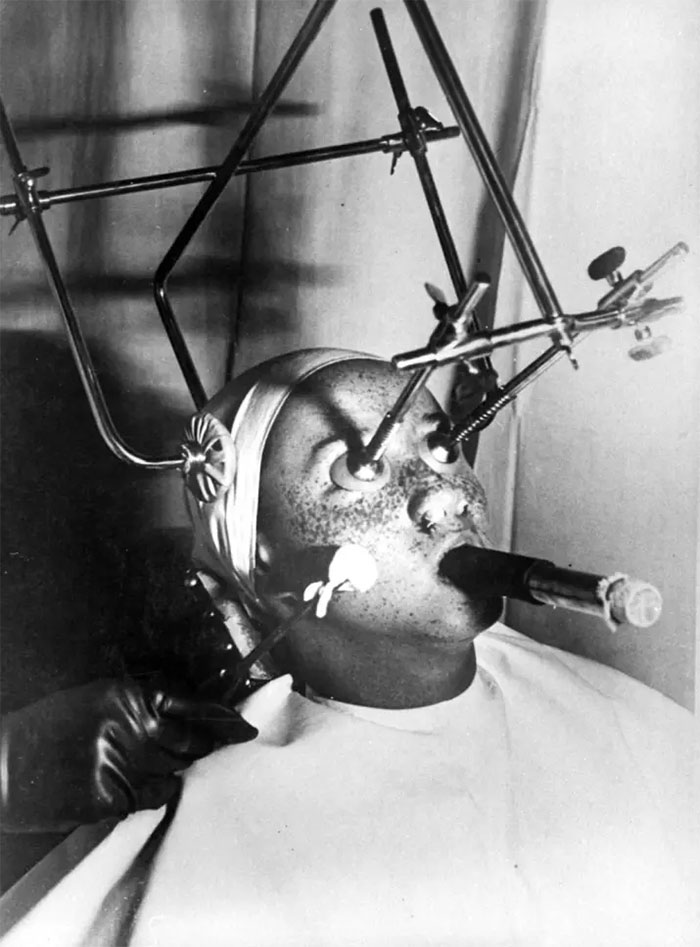Freckle Removal. A Complicated Apparatus Is Employed. Eyes Are Covered With A Special, Air-Tight Piece, And The Nostrils Filled In. Breathing Is Done Through A Special Tube. Sensitive Parts Of The Face Must Be Treated Separately, 1930