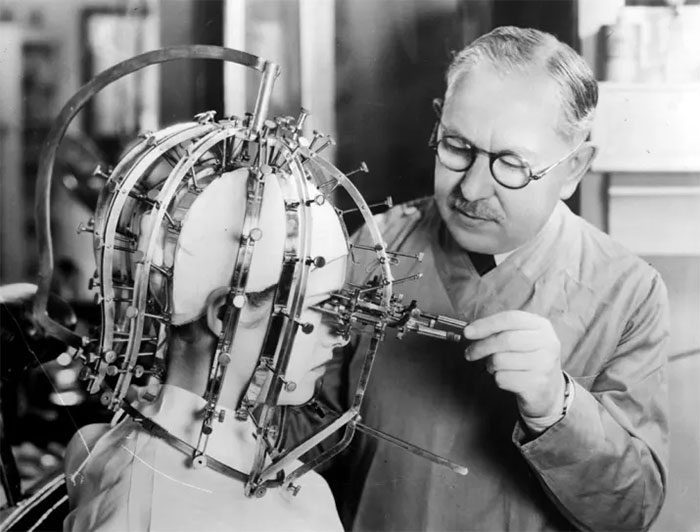 Taking Precise Measurements Of A Beautiful Young Woman's Head And Face With A Contraption Like An Instrument Of Torture, 1933