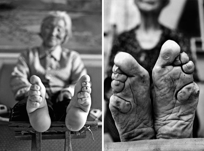 10th Century Chinese Tradition - Foot Binding