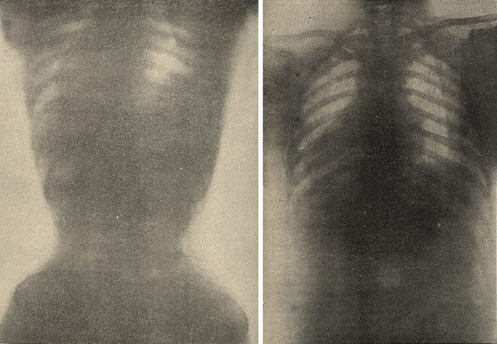 X-Ray Of Female Torso With Corset (Left) And Female Torso Without A Corset (Right), 1908