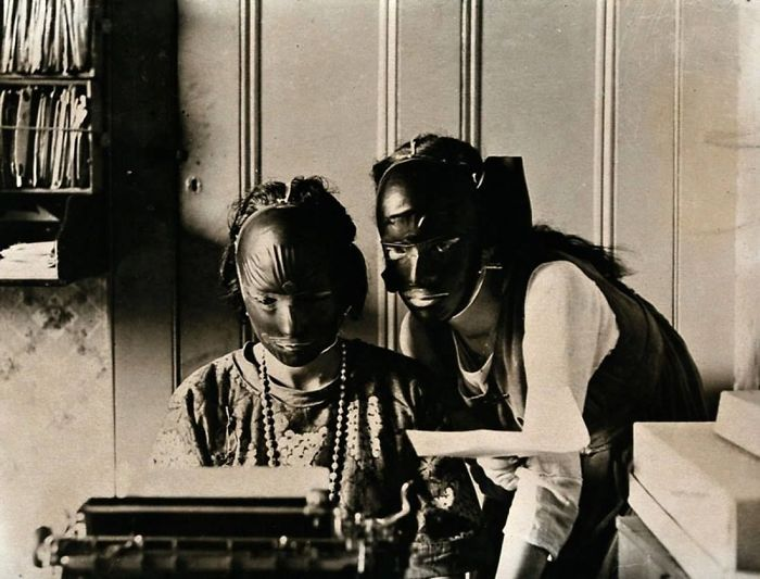 Rubber Beauty Masks Used To Get Rid Of Wrinkles In The 1920s
