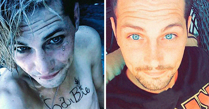 38 Stunning Before & After Transformations Of People Who Quit Drugs (New Pics)