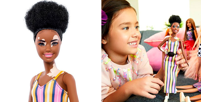 Barbie Celebrates Diversity By Creating Differently-Abled Dolls With Vitiligo And No Hair That Come In 35 Different Skin Tones
