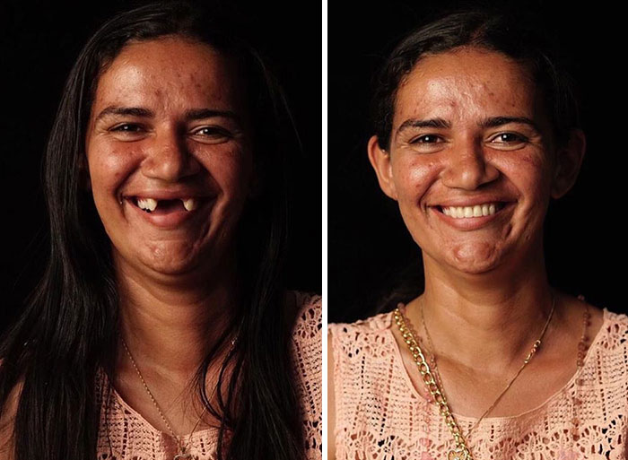 Brazilian Dentist Travels To Fix The Teeth Of Less-Fortunate People For Free And Here Are 30 New Transformations