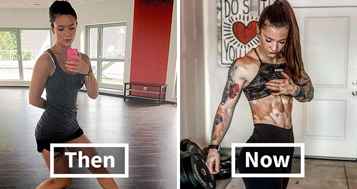 This Woman From Utah Learned To Accept Her Vitiligo Through Fitness And Weightlifting