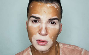 People Used To Avoid This Man With Vitiligo As They Thought It Was Contagious, He's Now A Model With Newfound Confidence