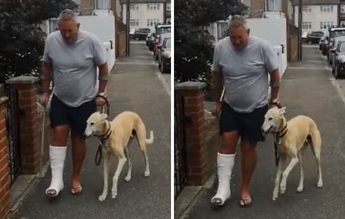 Injured Dog Owner Spends $400 On Vet For His Limping Dog Only To Find Out He Was Copying The Owner Out Of Sympathy