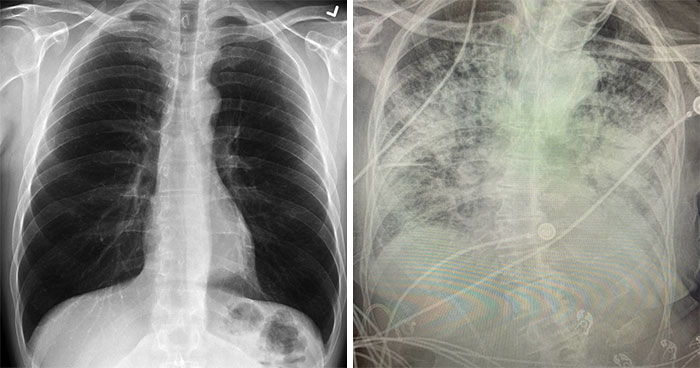 X-Ray Shows The Effect Of COVID-19 On The Lungs Compared To A Smoker's Lungs