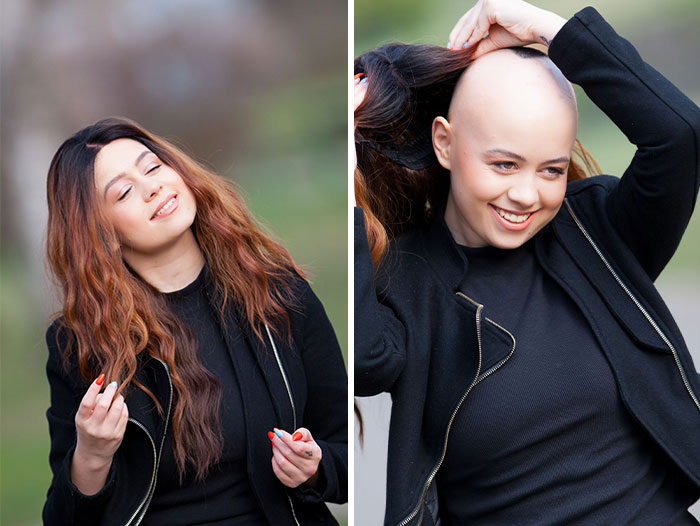 I Captured The Beautiful TV Reporter Who Decided To Embrace Her Alopecia