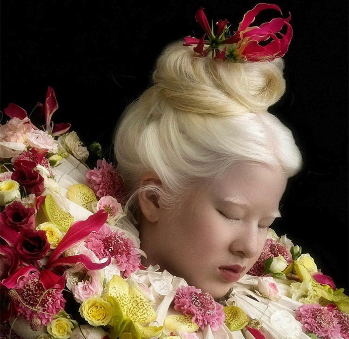 Abandoned As A Baby Due To Albinism, Xueli Grew Up To Become A Vogue Model (30 Pics)